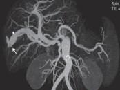 Fístula arterio-venosa intrahepática como causa  de hipertensión portal no cirrótica, en paciente  portador de hepatitis autoinmune.  Diagnóstico y tratamiento. Caso clínico