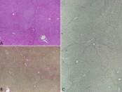 Hiperplasia nodular regenerativa del hígado secundaria  a uso de azatioprina por trasplante renal previo, tratado  con trasplante combinado hepático y renal