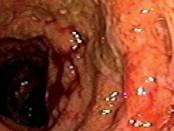 Infliximab en colitis ulcerosa:  Experiencia de un caso clínico