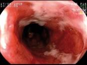 Prevención de la recurrencia post-quirúrgica  de la enfermedad de Crohn: revisión de la literatura  a partir de un caso clínico