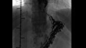 Dysphagia in patient with ligation and esophageal variceal sclerotherapy